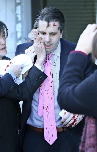 Atacan con un cuchillo al embajador de Estados Unidos en Corea del Sur