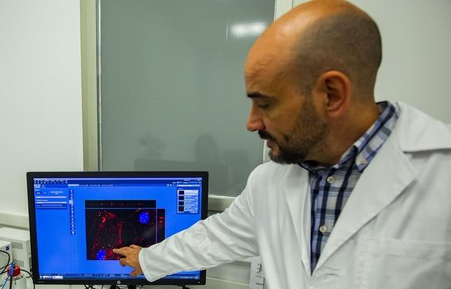 Investigadores obtienen una molécula causante del alzheimer