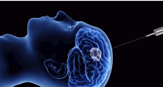 Descubren un virus contra los tumores cerebrales infantiles