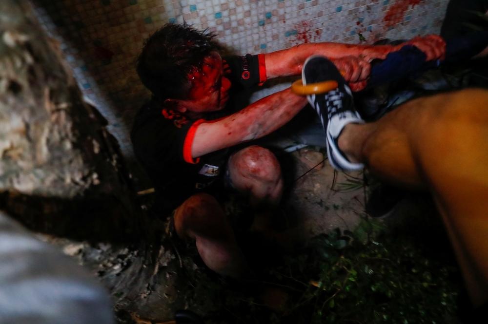 Hong Kong vive una nueva noche de violencia y luto