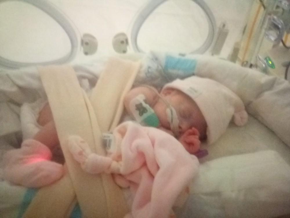 El milagro de Ecaterina: el bebé más prematuro del Clínico