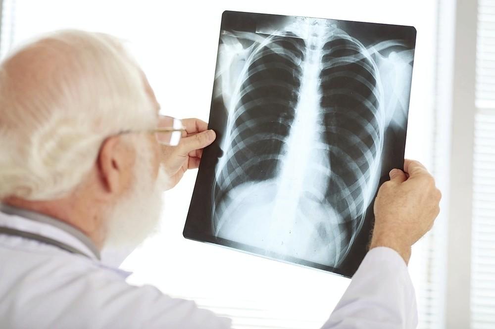 Prevén 3.900 nuevos casos de cáncer en Navarra en 2020
