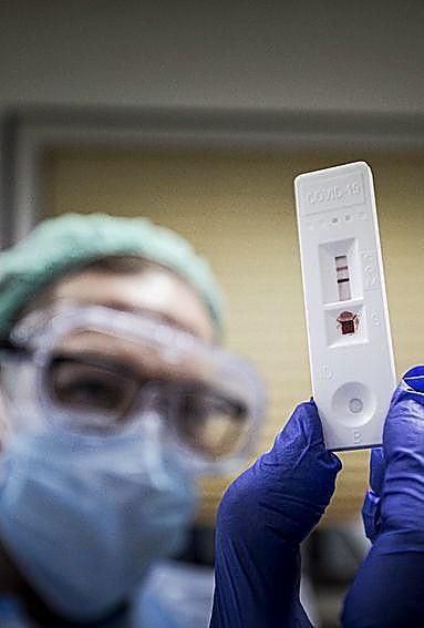 Seroprevalencia: la inmunidad grupal a examen