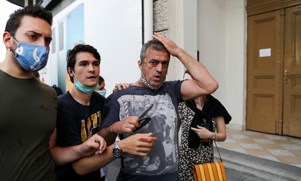 23 detenidos y 60 heridos por disturbios en Belgrado