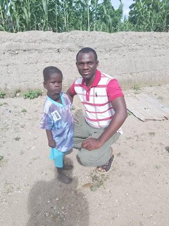 Christian, con su padre, en una imagen en la que se puede apreciar su patología.