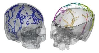 Estudio de venas diploicas en humanos modernos.