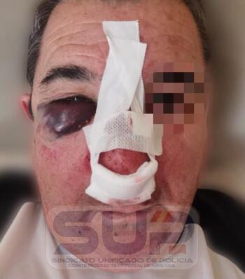 Agredido en Zaragoza un Policía Nacional destinado en Tudela