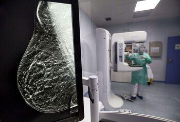 Casi 500 mujeres tuvieron mamografías sospechosas positivas