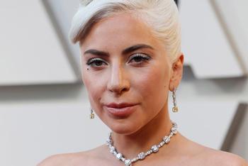 Lady Gaga recupera ilesos a los perros que le habían robado
